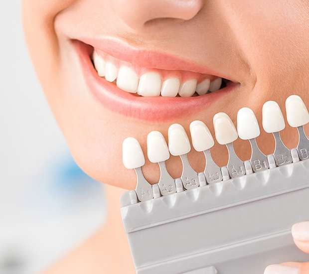 Arlington Dental Veneers and Dental Laminates
